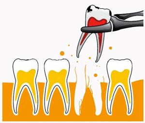 udalenie-zuba